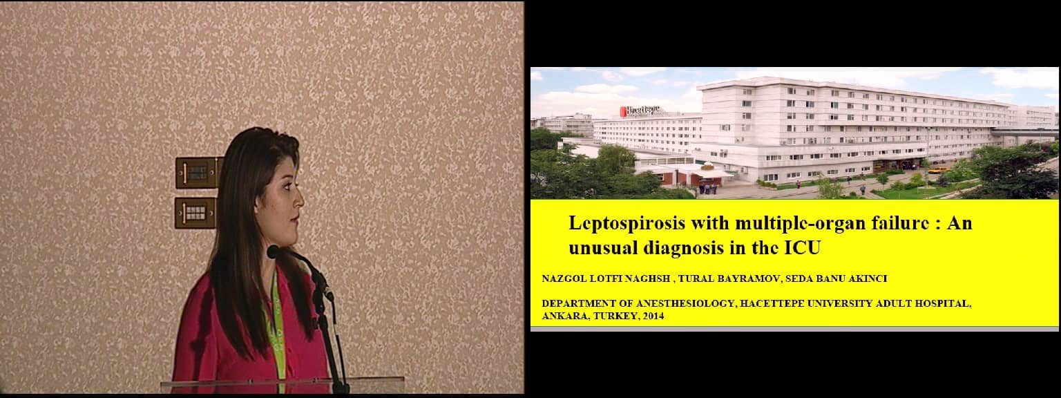Leptospirosis with multiple-organ failure: An unusual diagnosis in the ICU