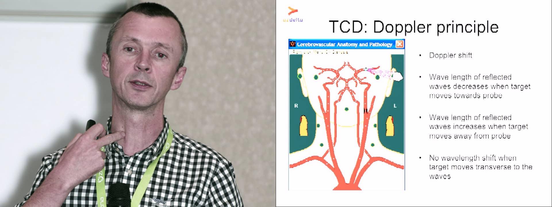 Transcranial doppler (TCD) - vascular access
